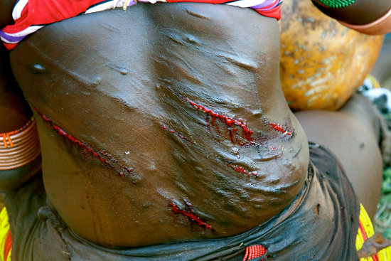 shobha gopinath Scars of pride, Hamer woman, Omo Valley, Ethiopia